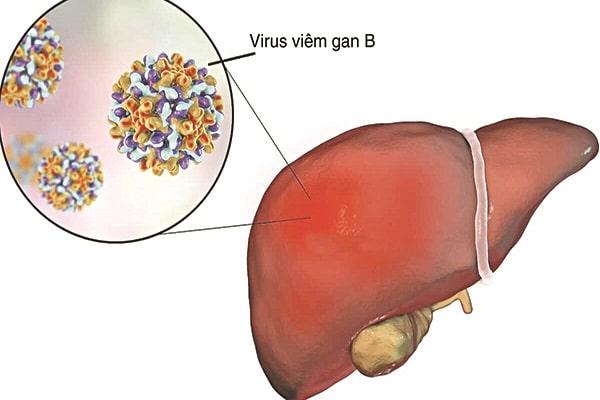 Thuốc nam trị viêm gan B
