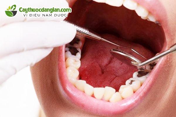 Cách bắt sâu răng bằng lá tía tô