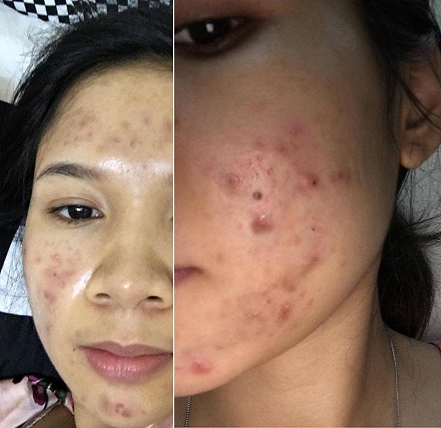 Clean Acne 3S NDHCosmetics Hoàng Gấm 2