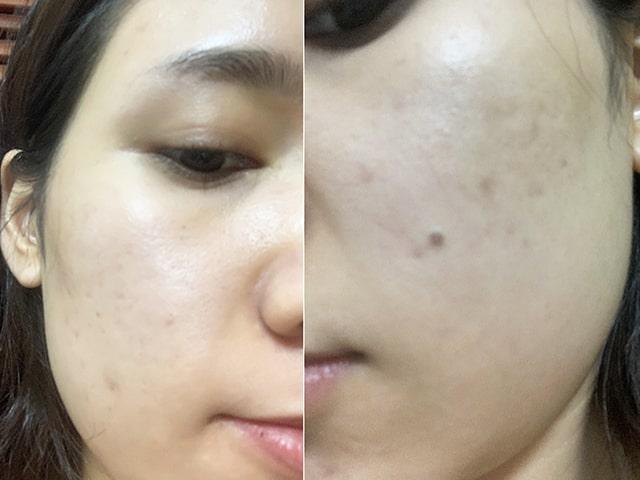 Clean Acne 3S NDHCosmetics Hoàng Gấm 4